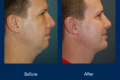 chin-implant-1-ba