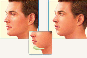 Chin Lifts - the Fastest Growing Trend in Plastic Surgery