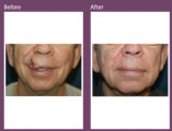 Beyond Aesthetics - Cosmetic Surgery that Repairs