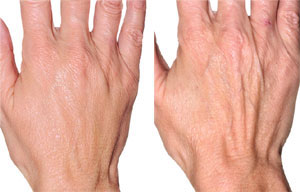 Are You in Need of Hand Rejuvenation?