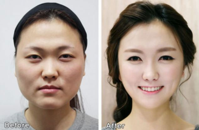 Cultural Differences Defines Attitudes Towards Cosmetic Surgery