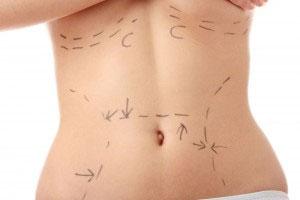 Tummy Tuck - The Basics