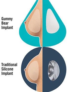 """Gummy Bear"" Breast Implants"
