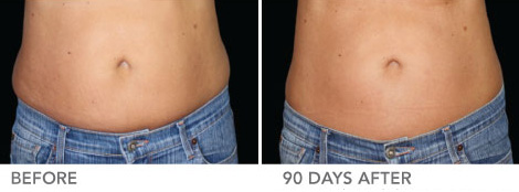 CoolSculpting® For Women